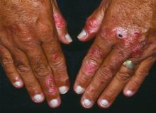 terry's nails picture