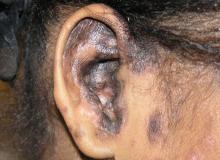 toczeń postać odmrozinowa ucho
