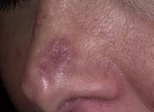 toczeń rumieniowaty krążkowy na nosie
