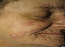 toczeń rumieniowaty krążkowy na twarzy