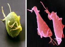 Trichomonas vaginalis pics