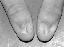 Turner-Kieser syndrome