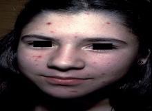 twarz trądzikowa