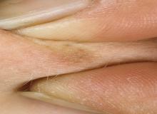 włókniaki skórne miekkie