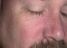 wypryski na nosie