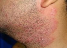 Zapalenie mieszków włosowych i figówka