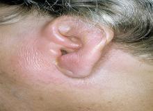 zapalenie ucha objawy u dorosłych