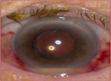 zapalenie wnętrza gałki ocznej objawy