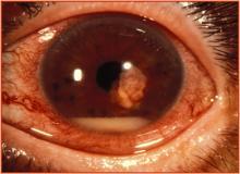 zdjęcia zapalenie wnętrza gałki ocznej