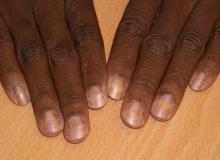 Złuszczenie płytki paznokciowej