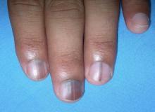 zmiany barwnikowe pod paznokciem