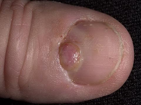 ziarniak na paznokciu